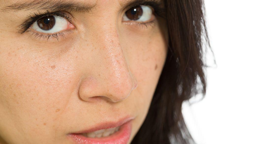 17女孩子脸上长斑点 u8138u4e0au957fu6591u3010u6709u95eeu5fc5u7b54u3011u5df2u89e3u51b31653u6b21!