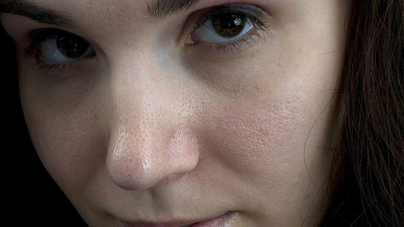 17女孩子脸上长斑点 u300cu533bu4fddu533bu9662u300du4e0au6d77u795bu6591u4e0au6d77u4e13u4e1au795bu6591u533bu9662